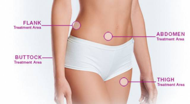 VelaShape III Cellulite Reduction